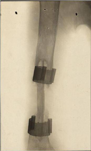 Humerus Xray George William Rushmer