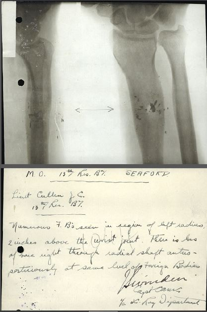 radiograph and report