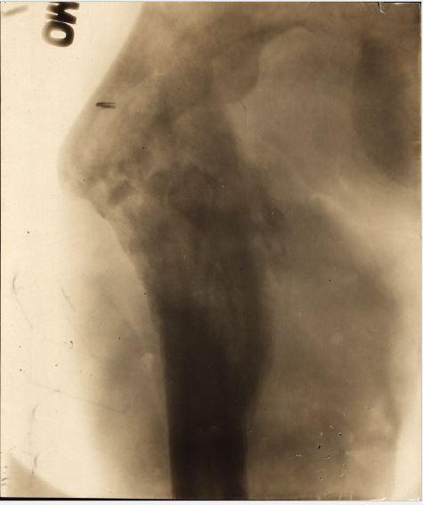 Xray of left femur.