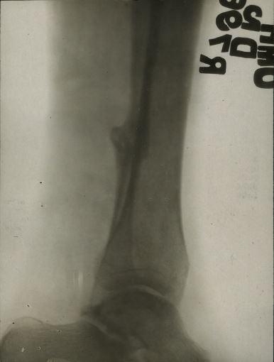 xray of wound 2