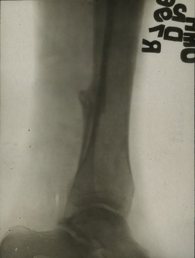 xray of wound 2