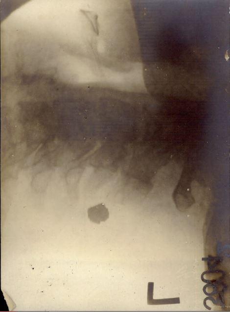 John Henry Burr xray of neck and bullet b