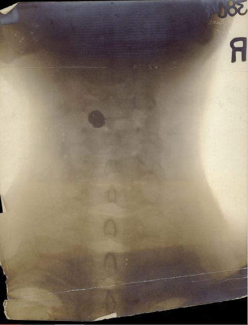 John Henry Burr xray of neck and bullet