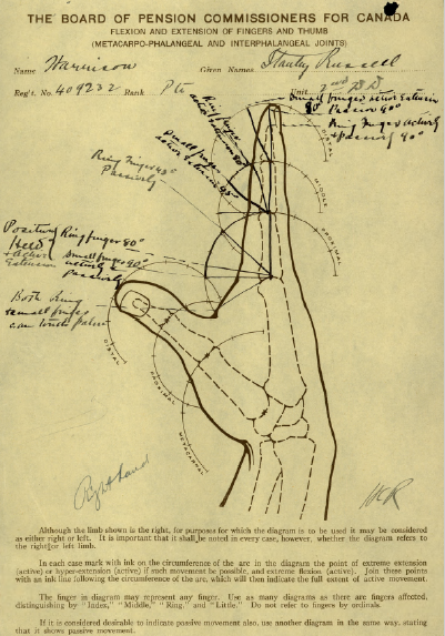 Diagram of Injury