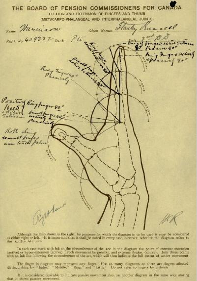Diagram of Injury