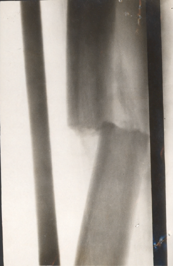 xray-2-of-right-femur-fracture-cumming
