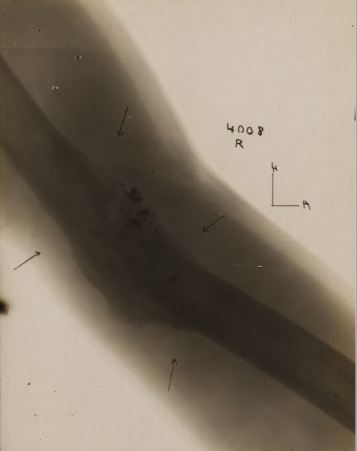 Xray of wound for Alvin Bedford Stewart 880022 plate 2