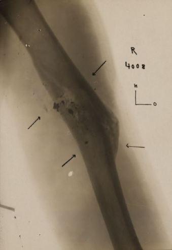Xray of wound for Alvin Bedford Stewart 880022