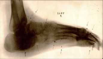 Xray of foot with foreign body